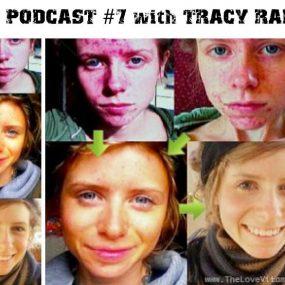 IFS Podcast #7 с Трейси Рафтл: Не крийте акнето – излекувайте го завинаги